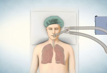 lung_transplant