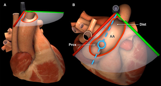 Virtual TEE: Using spectral Doppler to evaluate the aortic arch