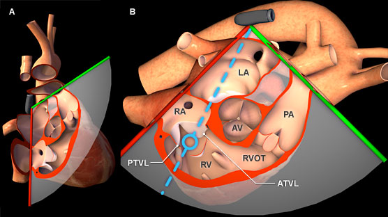 Virtual Tee Using Spectral Doppler To Evaluate The Tricuspid Valve