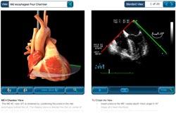 TEE - Echo -  Dreidimensionalen Herzstruktur