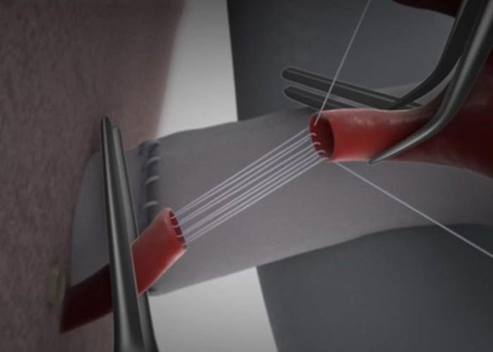 Parachute arterial anastomosis