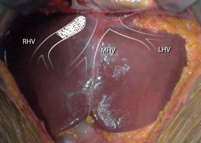 Ex-vivo liver 1/6/7 segmentectomy with en bloc caval resection and right nephrectomy