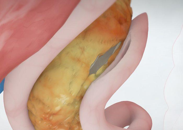 Longitudinal Pancreaticojejunostomy (Puestow Procedure)