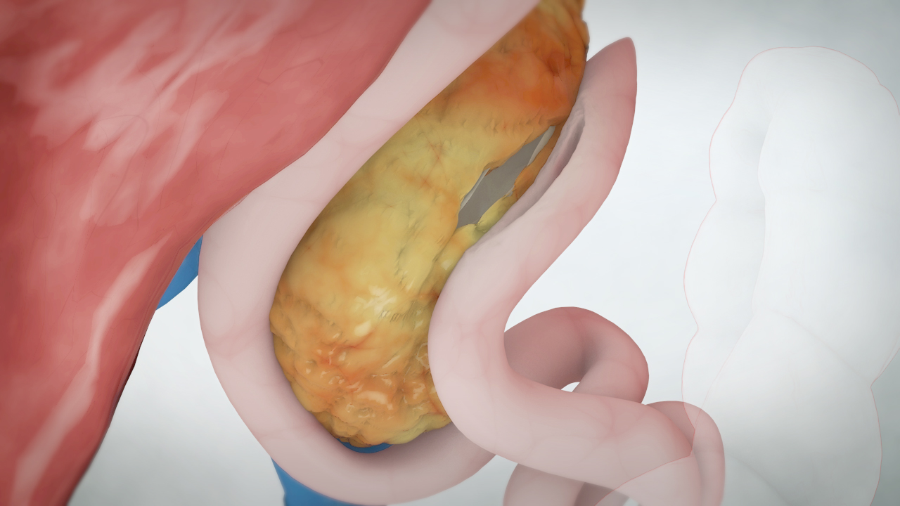 Longitudinal Pancreaticojejunostomy (Puestow Procedure