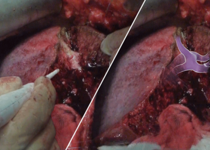 Liver transection technique: Water-jet dissection