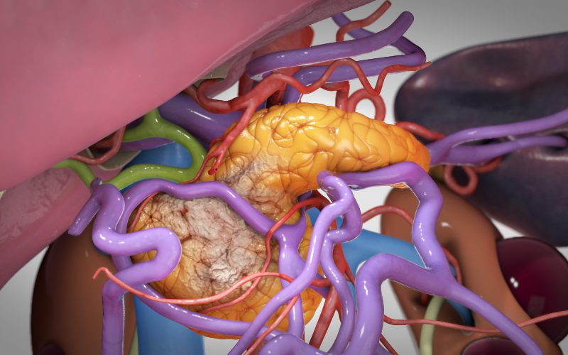 Total pancreatectomy with long portal vein reconstruction