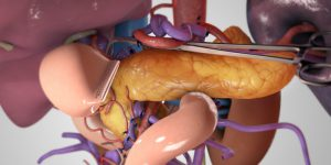 Total pancreatectomy with PV reconstruction to 2 SMV branches