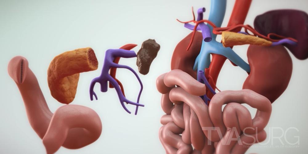 TVASurg Process: 3D Modelling