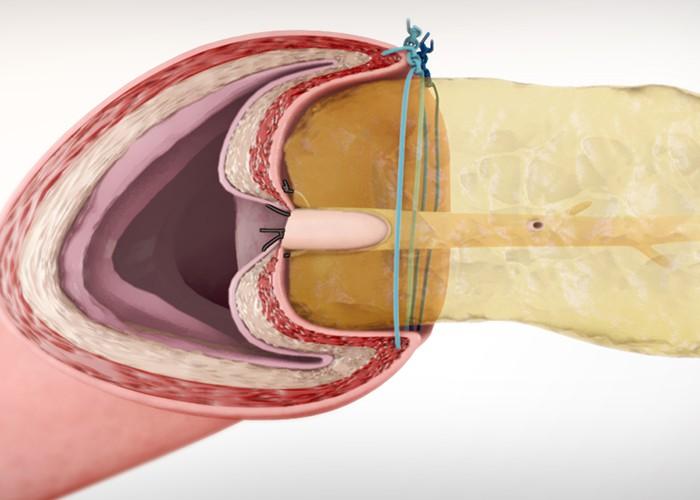Laparoscopic Blumgart-style pancreaticojejunostomy