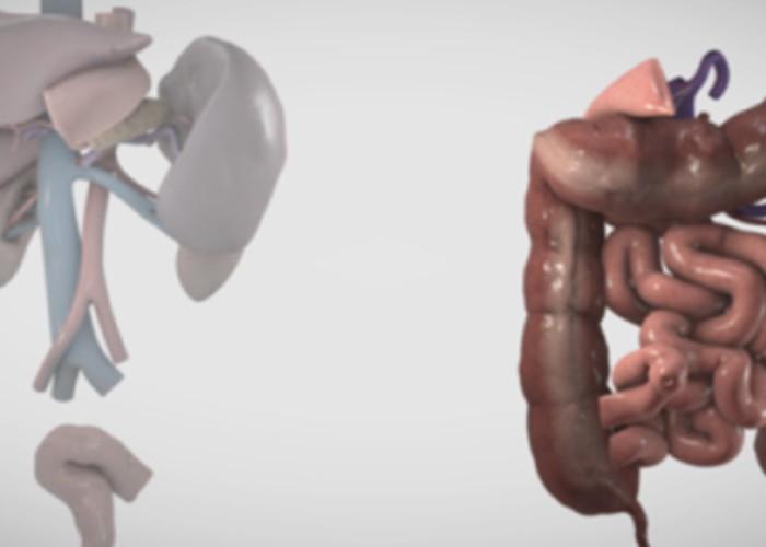 Ex vivo Whipple with small bowel autotransplant