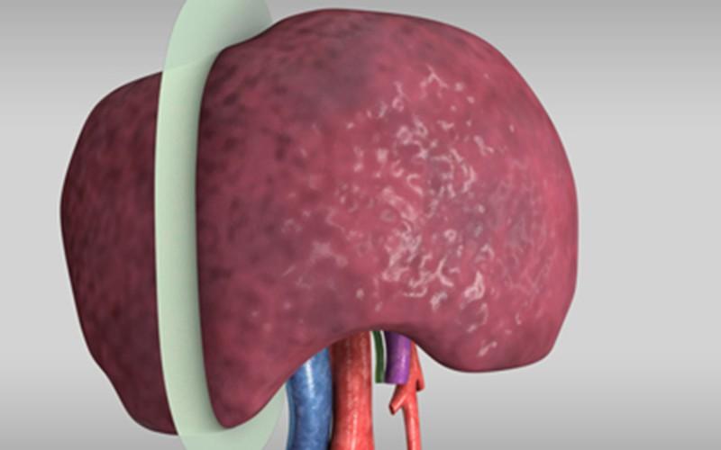 Segment VI/VII segmentectomy