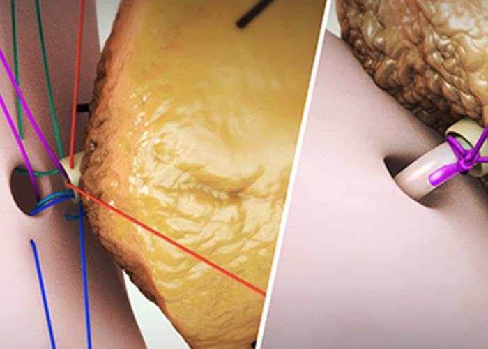 Pancreaticojejunostomy with stent