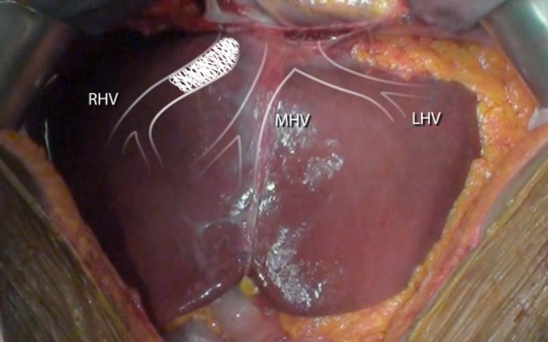 Ex-vivo liver I/VI/VII segmentectomy with en bloc caval resection and right nephrectomy