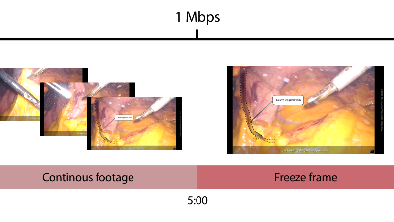 Video Editing Tips for Surgeons, Pt. 3: Video bitrates
