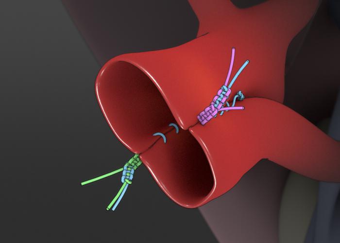 Side-to-side Arterioplasty