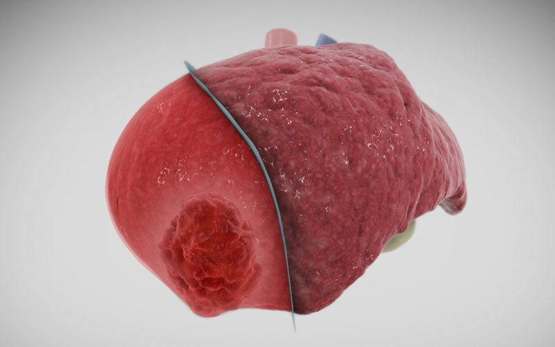 Laparoscopic right posterior sectionectomy