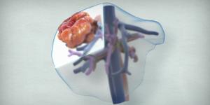 Segment VII/partial segment VIII liver resection