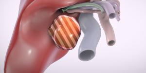 Laparoscopic segment V tumorectomy