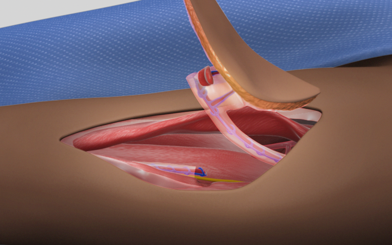 Anterolateral Thigh Perforator Flap Harvest