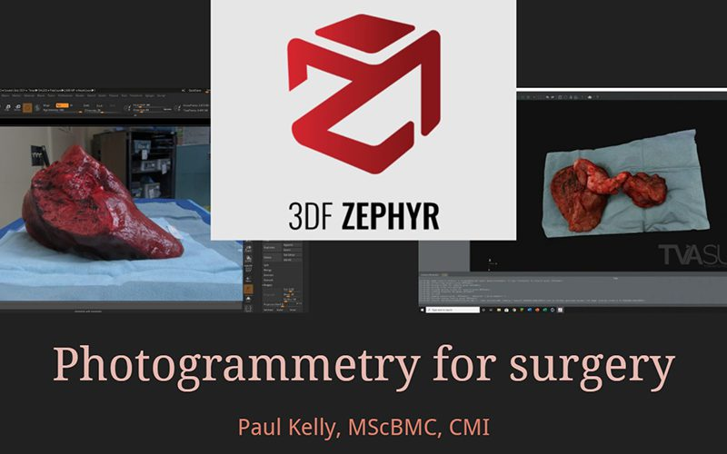 AMI Tech Talk: Photogrammetry for surgery